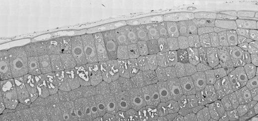 Arabidopsis thaliana, root tip. Image of 2,142 billions pixels. Image size 176 x 71 µm © Damien De Bellis, EMF, UNIL